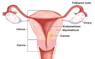endometrial cancer nhs
