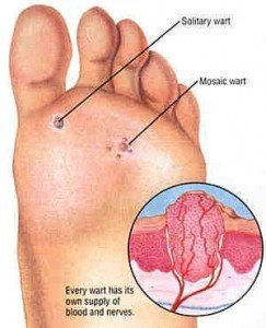 veruca foot infection treatment)