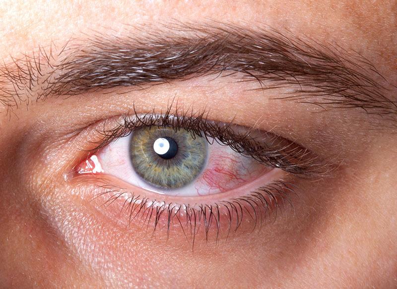Ochii uscați - ce puteți face când ochii ustură și aveți o senzație de mâncărime?