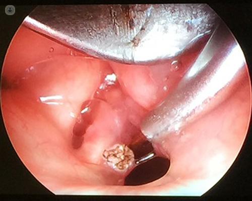 respiratory papillomatosis cure
