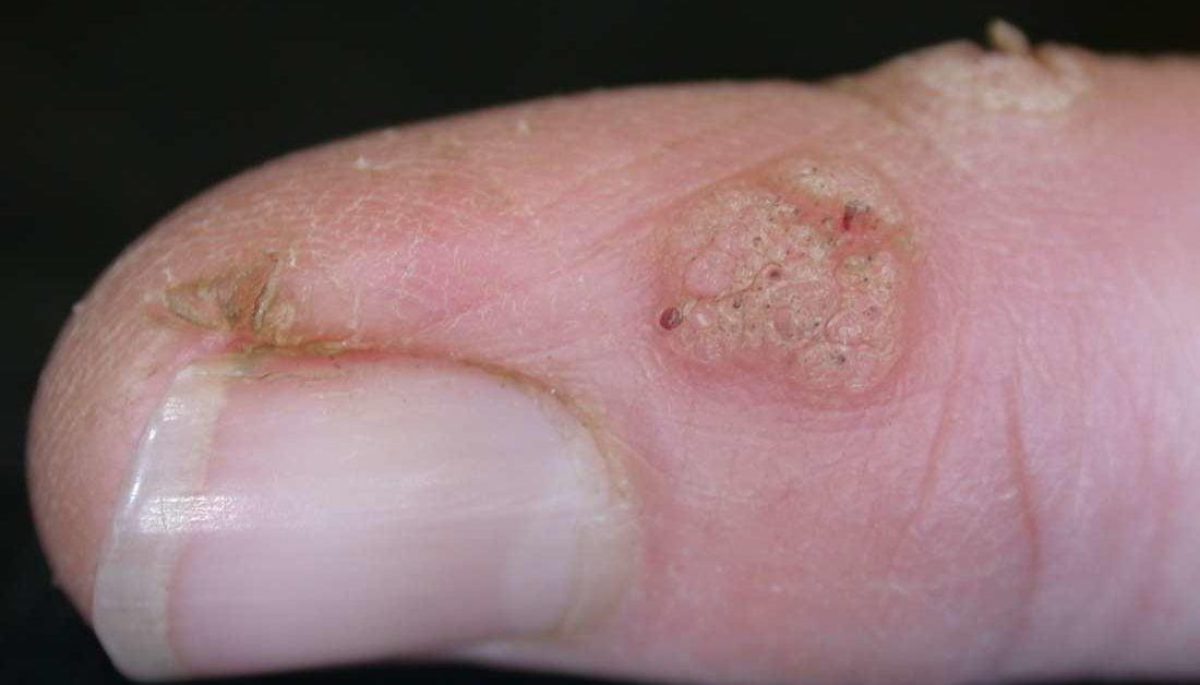 Hpv fingernails, Medtech tratamentul psoriazisului