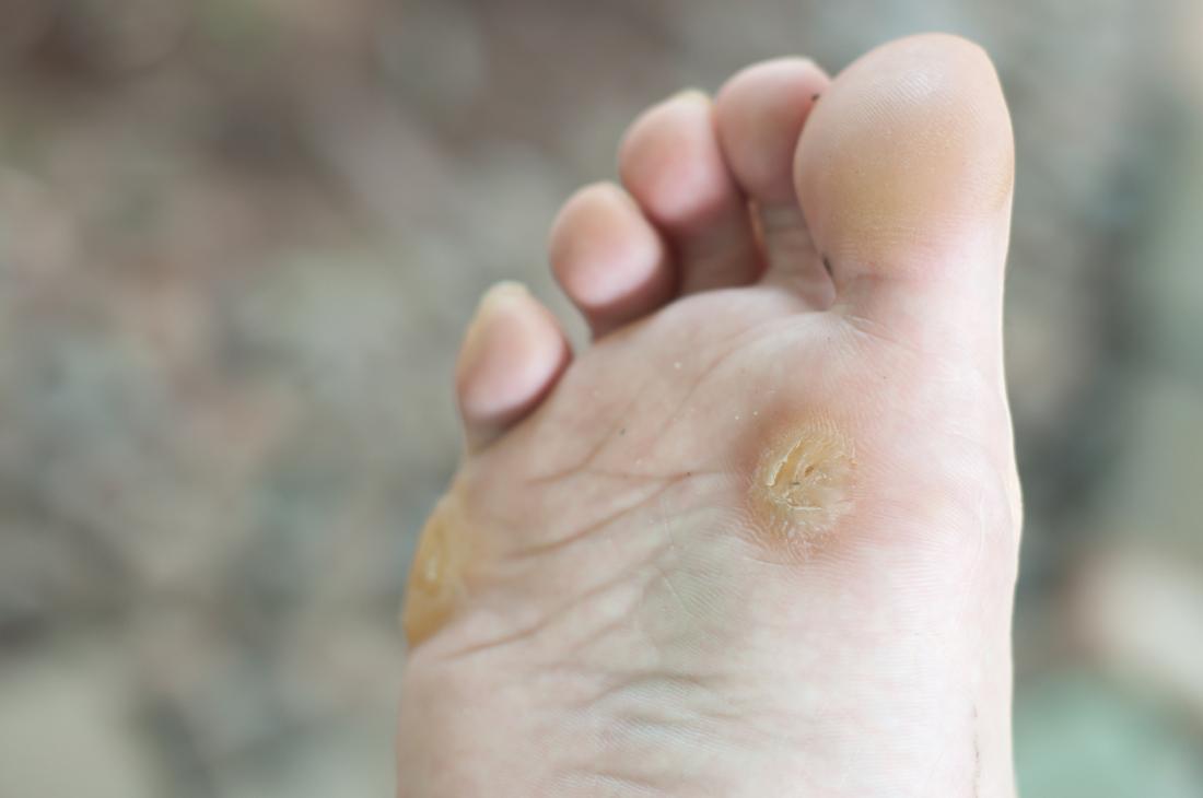 Wart on foot or blister. Parazit ve vlasech