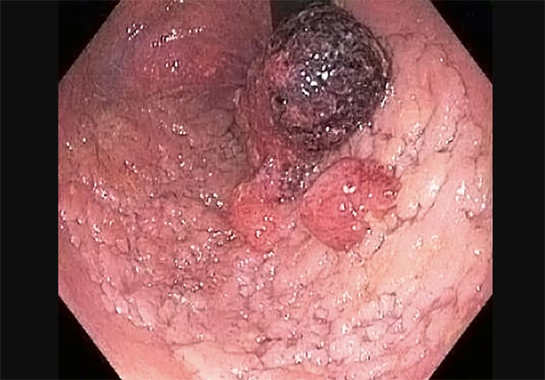 Endoscopy in Gastric Cancer