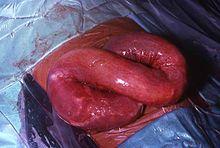 helminth infection symptoms