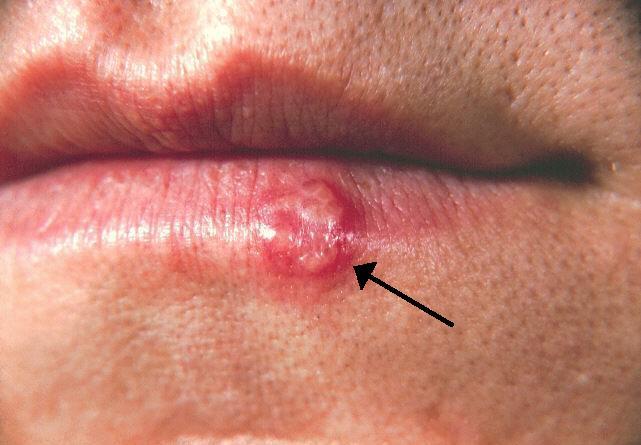 herpes et papillomavirus