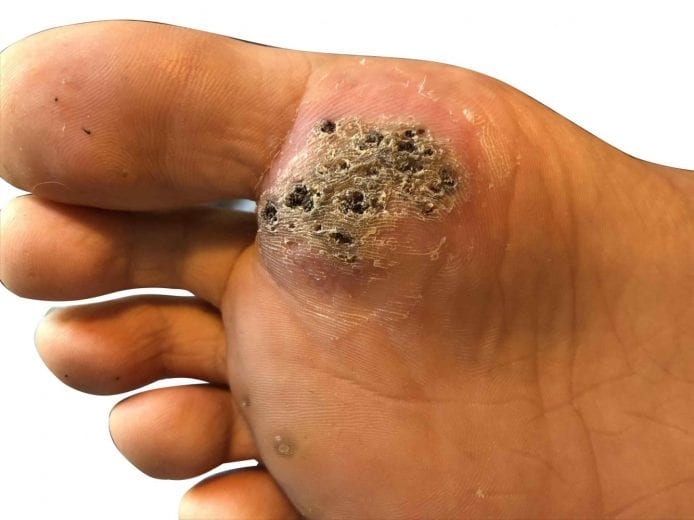 hpv and feet)