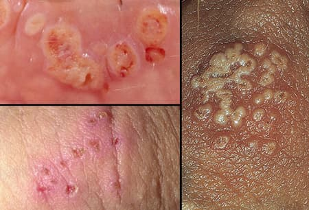 hpv and herpes symptoms)