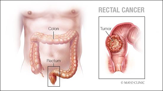 hpv and rectal cancer)