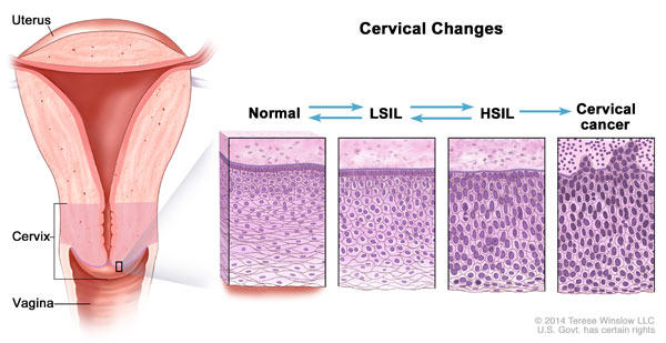 hpv cell removal)