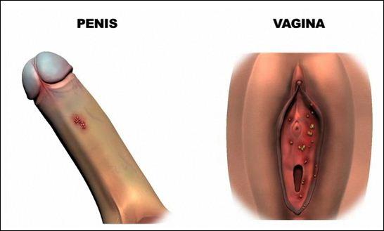 hpv genital imagens)