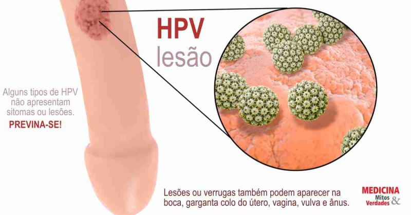 hpv genital transmissao