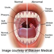 hpv inside mouth)