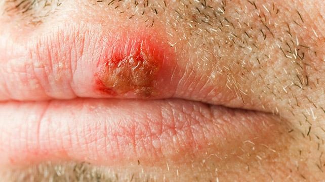 hpv lip lesions