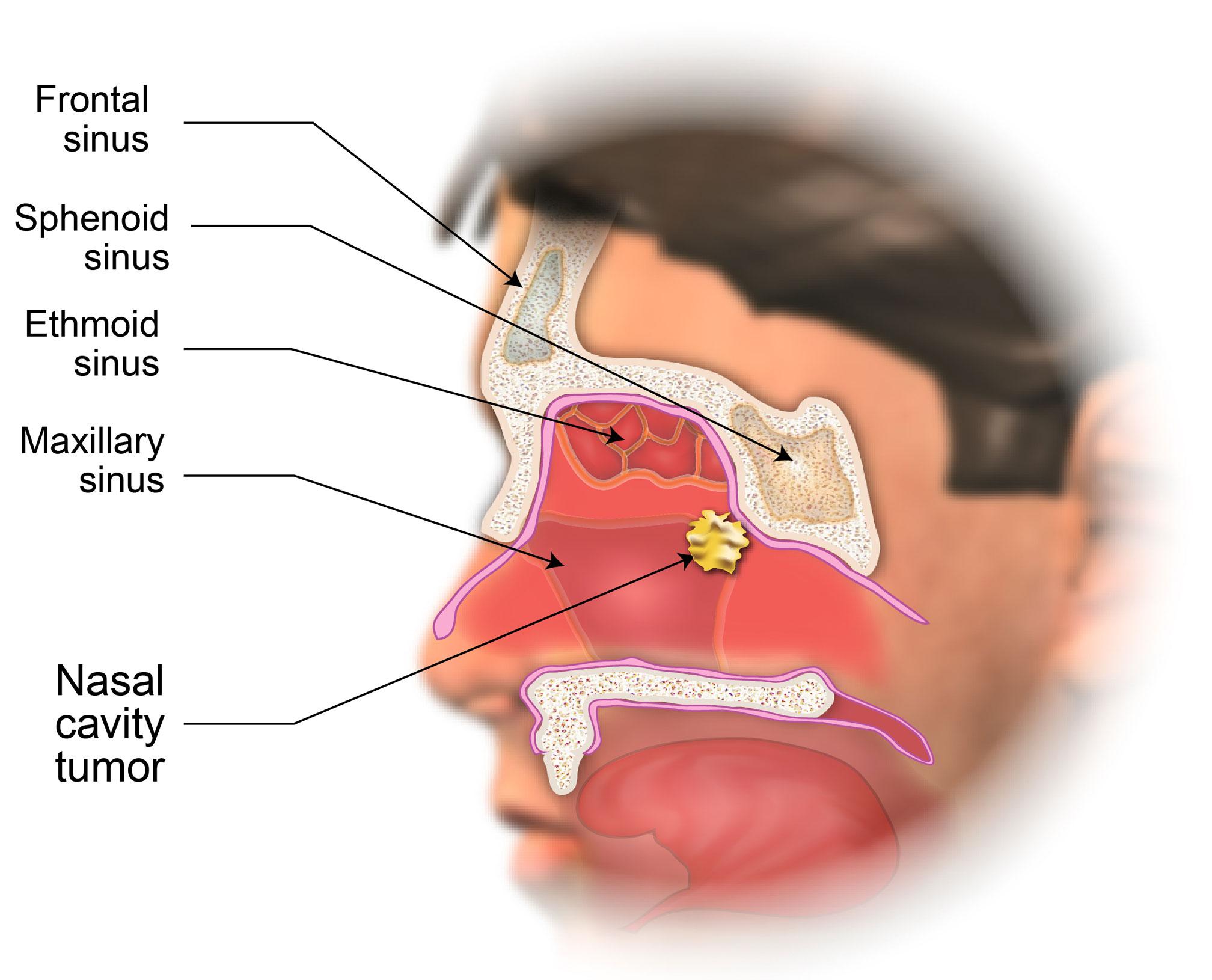 Papilloma nasal pathology