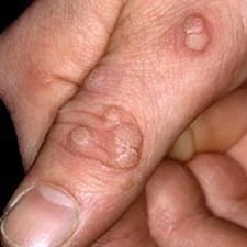 hpv papillomavirus shqip)