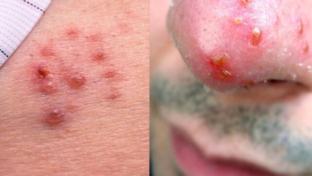hpv virus vorter