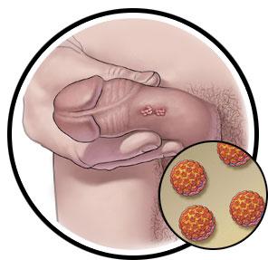 human papillomavirus infection in males