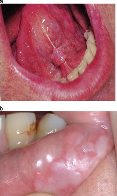 human papillomavirus under tongue)