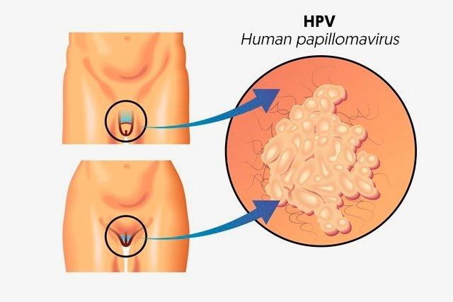 infezione da papilloma virus cause