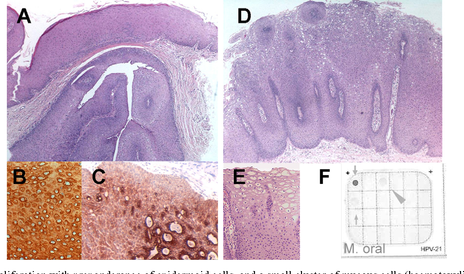 Intraductal papilloma of salivary gland Personal Habits and Indoor Combustions.