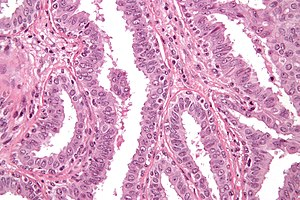 intraductal papilloma pathology outline