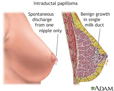 intraductal papillomas symptoms)