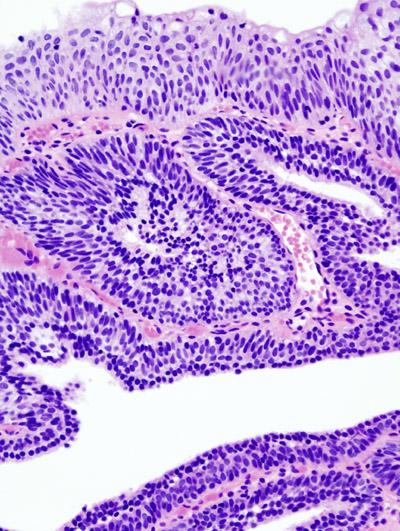 inverted papilloma of bladder pathology)