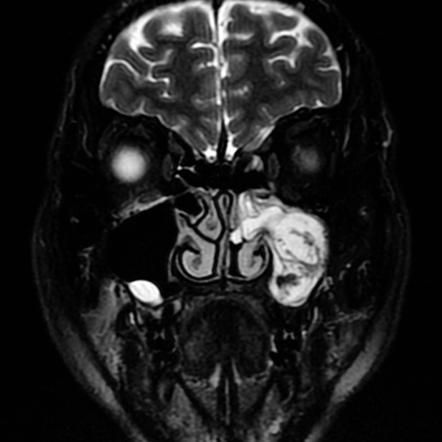 Malignant inverting papilloma, Frontal sinus osteoma – case report
