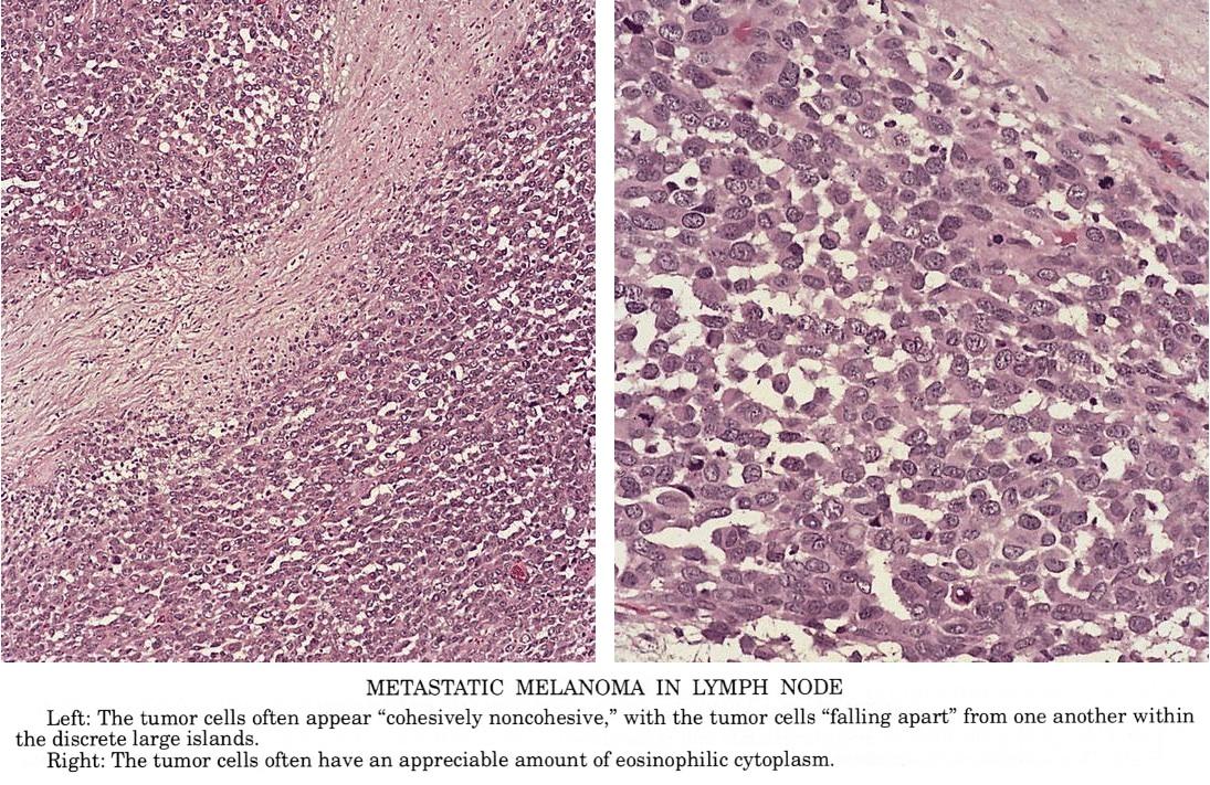 metastatic cancer and lymphoma)