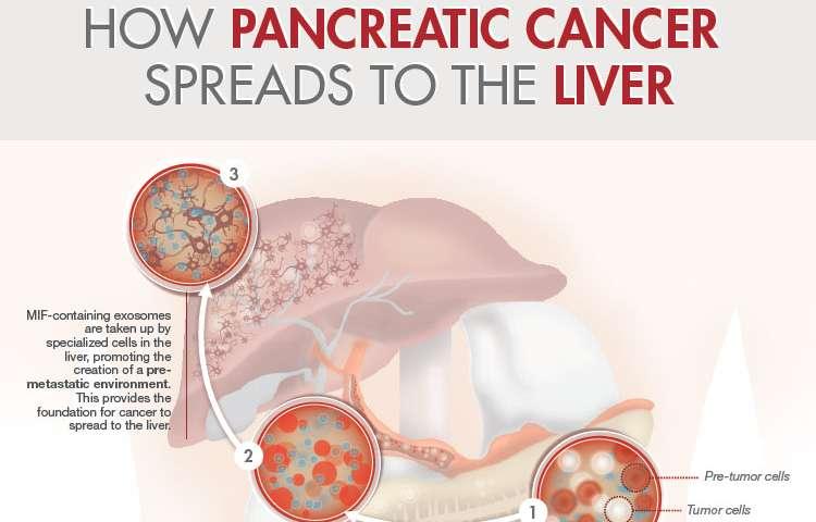 metastatic cancer and pancreatic)