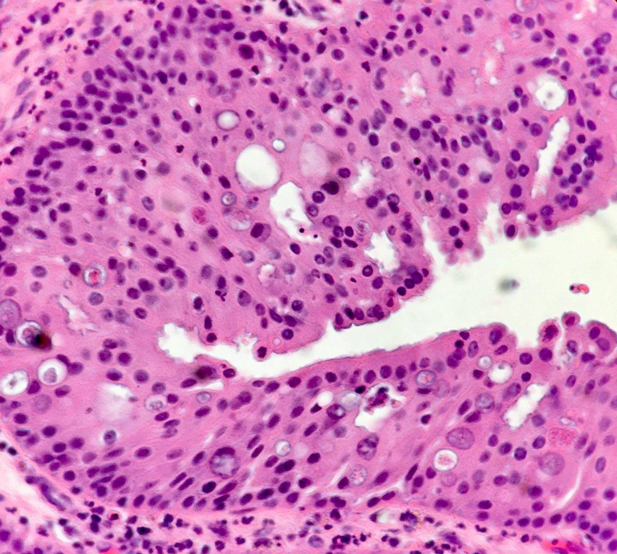 Oncocytic sinonasal papilloma, You May Also Like