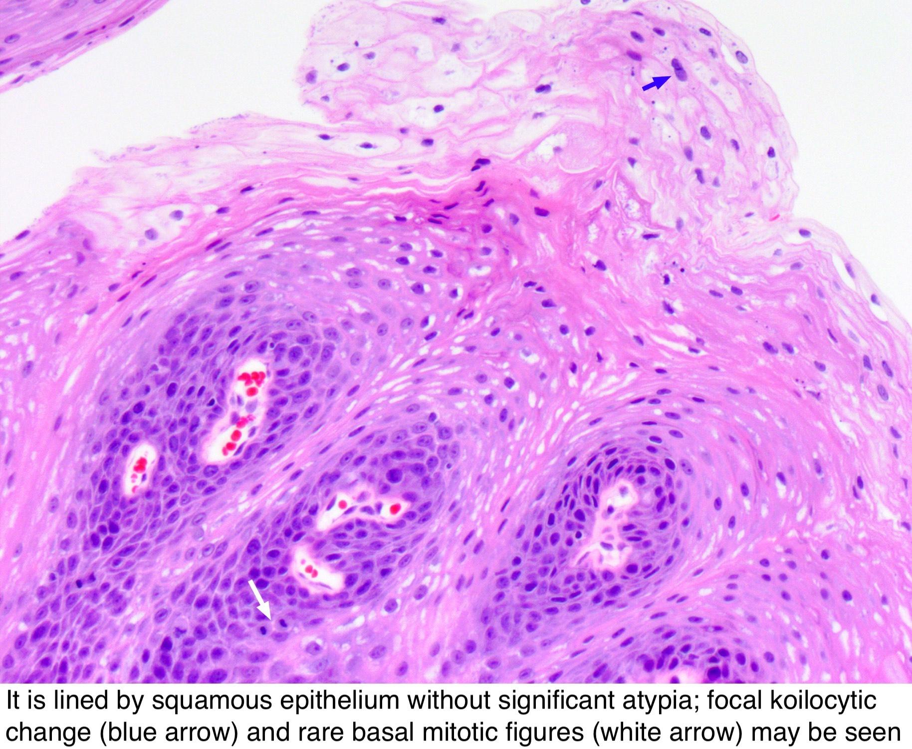 papilloma bladder pathology outlines)
