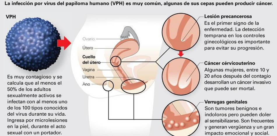 Throat papilloma removal