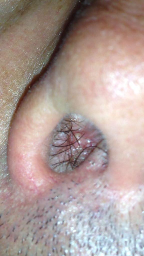 virus papilloma gola)
