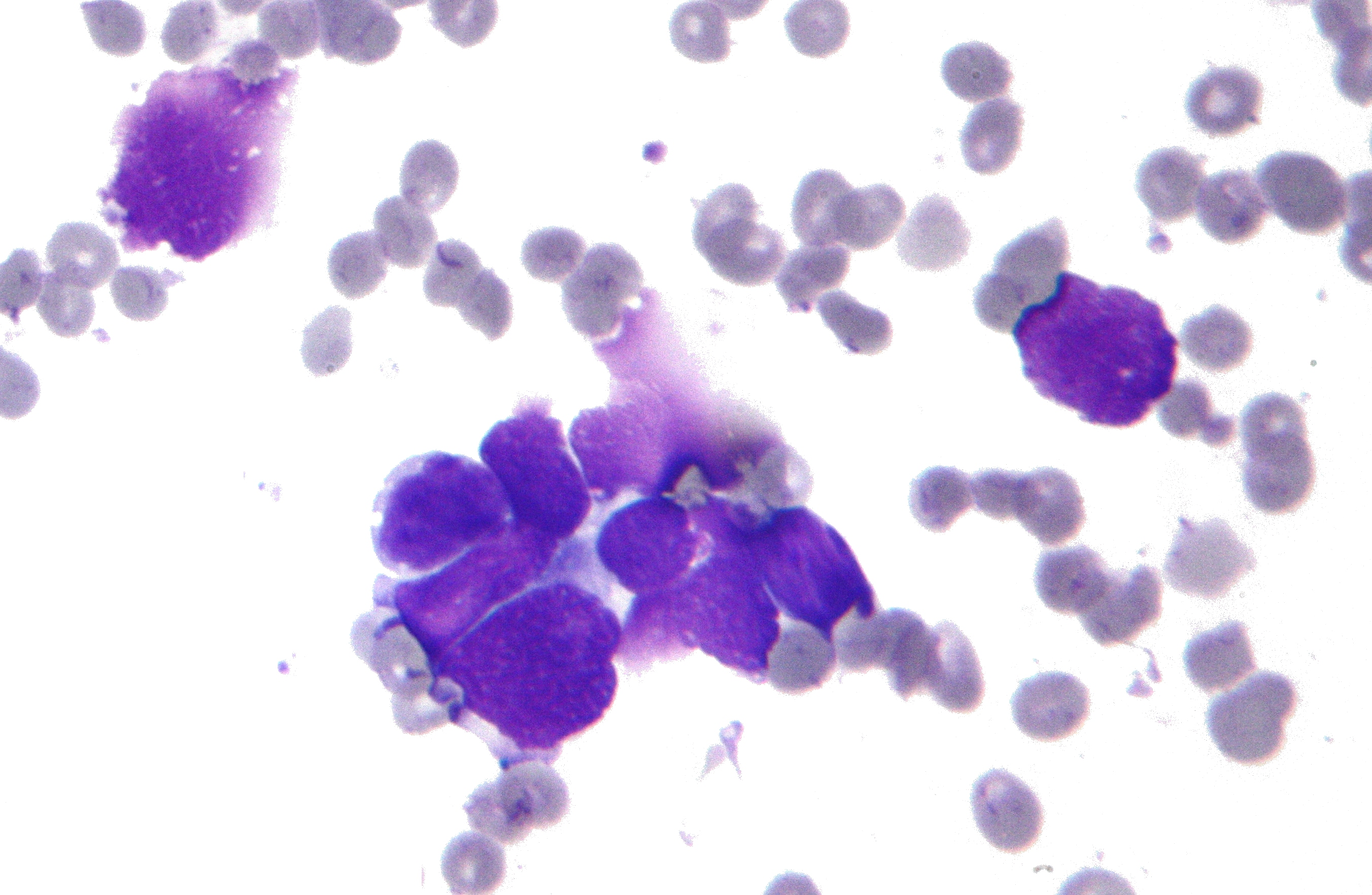 papilloma lung cancer)