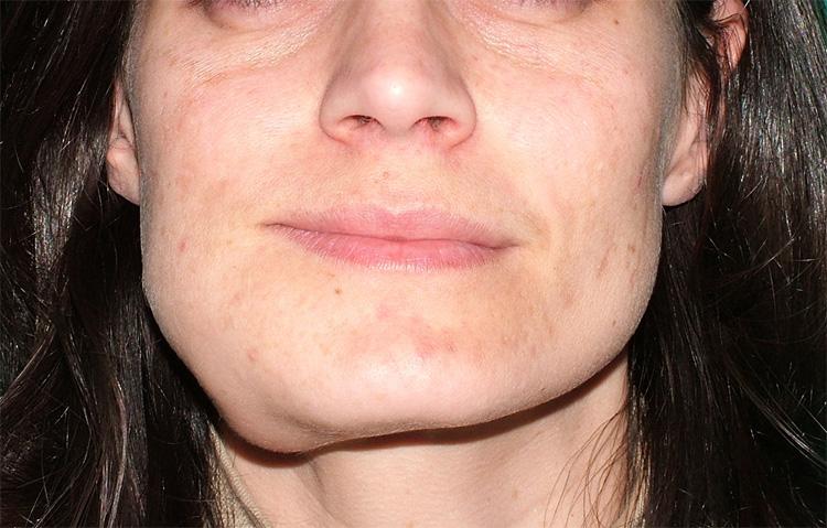 squamous papilloma leg dermatite da contatto