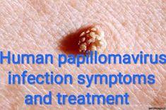 papilloma therapy