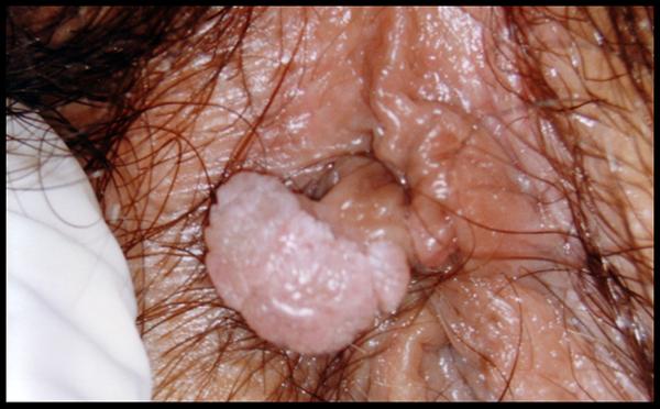 Papilloma of the colon