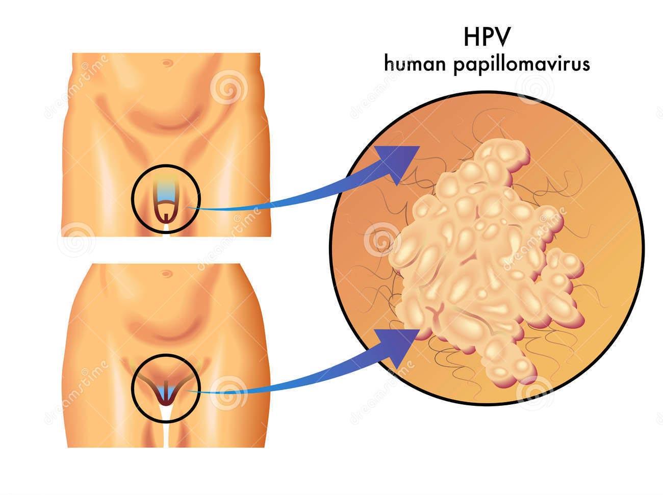 papilloma virus sintomi e immagini)