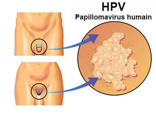 papillomavirus homme boutons