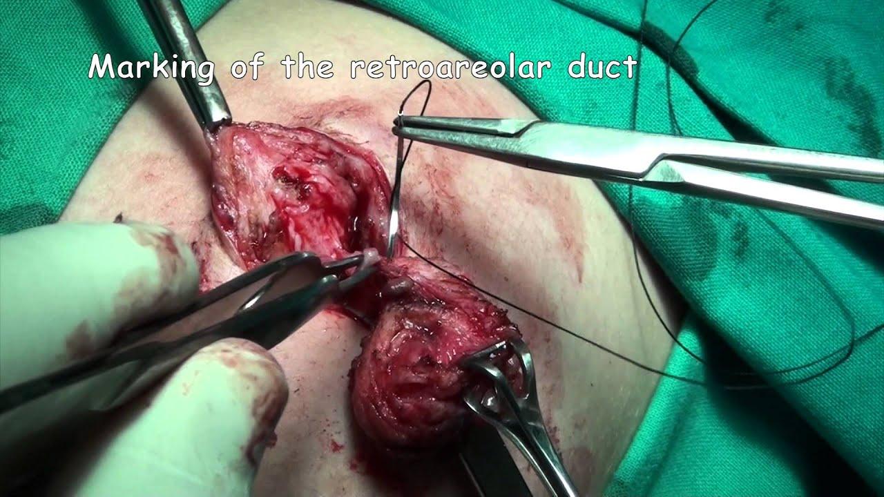 papillomavirus operation