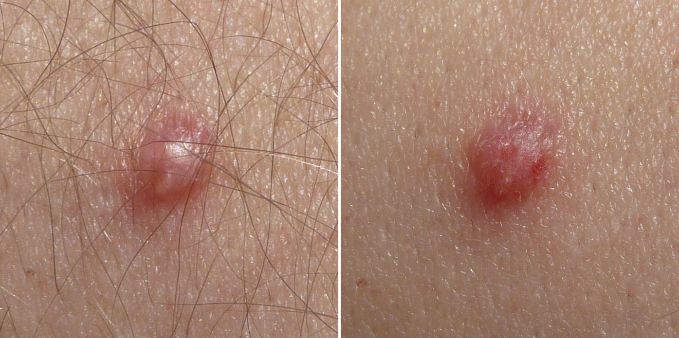 papillomavirus probleme peau)