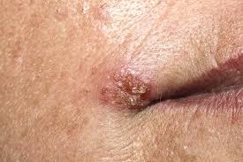 papiloma en el ano sintomas