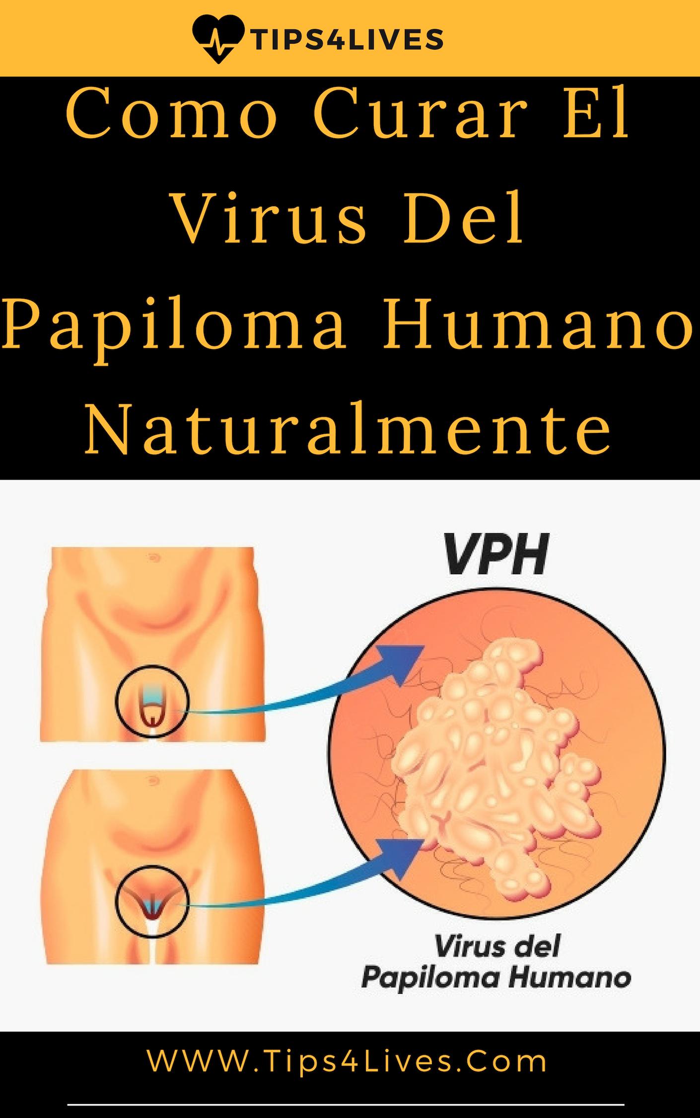 papiloma virus tratamientos)