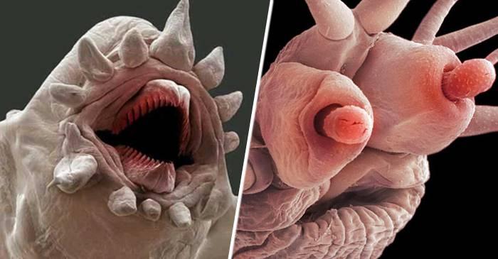 parazitii corpului uman)