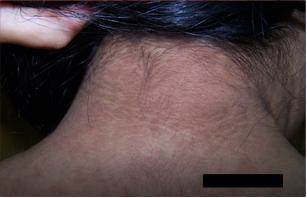 que es la papilomatosis confluente y reticulada)