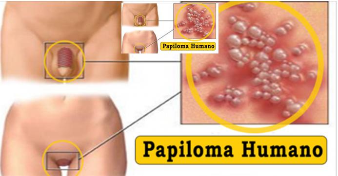 Virus papiloma humano mujer consecuencias, Înțelesul