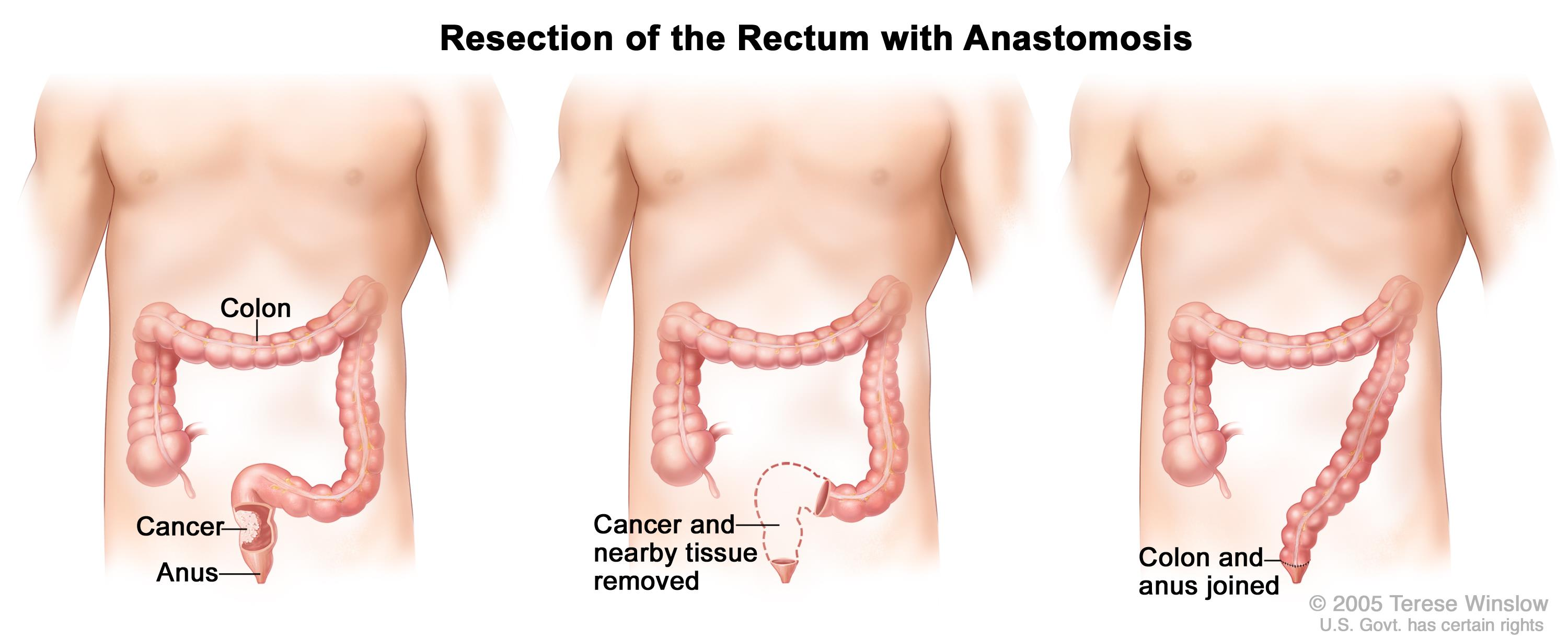 Rectal cancer with a colostomy