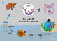 Schistosomiasis features. Sherlock's Diseases of the Liver and Biliary System