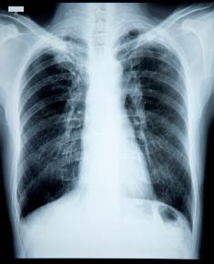 Cancerul pulmonar: cel mai mortal tip de cancer din lume   4vip.ro